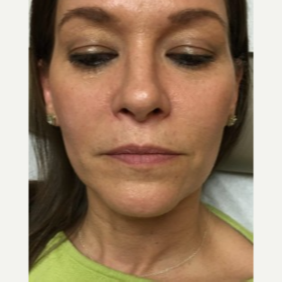 45-54 year old woman treated with Lip Augmentation before 3451834