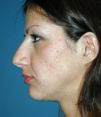 29 Year Olf Female Treated for Nasal Deformity before 951774