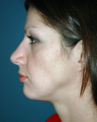 29 Year Olf Female Treated for Nasal Deformity after 951774