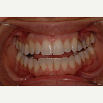 25-34 year old woman treated with Clear Braces after 3207112