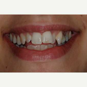 25-34 year old woman treated with Clear Braces before 3207112
