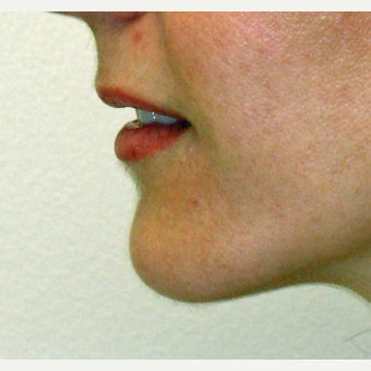 45-54 year old woman treated with Chin Surgery after 1775161