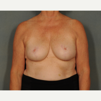 55-64 year old woman treated with Breast Reduction after 2975607