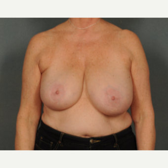 55-64 year old woman treated with Breast Reduction before 2975607