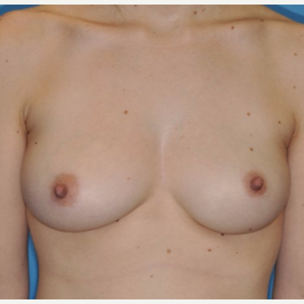 25-34 year old woman treated with Breast Augmentation before 3844186