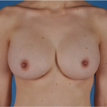 25-34 year old woman treated with Breast Augmentation after 3844186