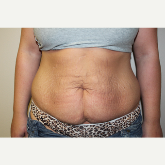 25-34 year old woman treated with Tummy Tuck before 3225051