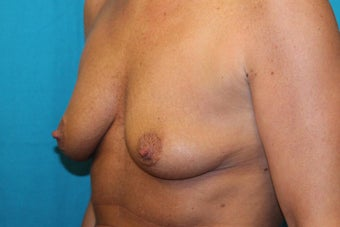 45-54 year old woman treated with Breast Lift and Breast Augmentation 3524408
