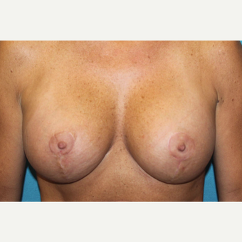 45-54 year old woman treated with Breast Lift and Breast Augmentation after 3524408