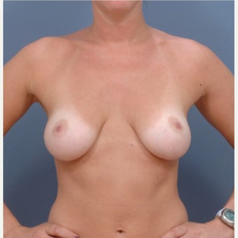 25-34 year old woman who is BRCA+ treated with Breast Reconstruction before 2060755