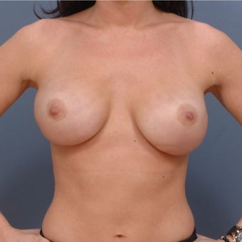25-34 year old woman who is BRCA+ treated with Breast Reconstruction after 2060755