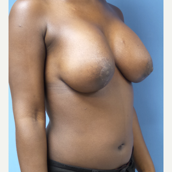25-34 year old woman treated with Breast Lift with Implants after 3180285