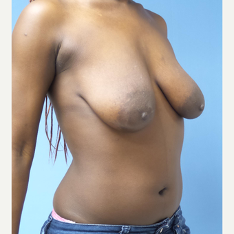25-34 year old woman treated with Breast Lift with Implants before 3180285