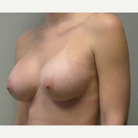 Breast Augmentation after 3681145