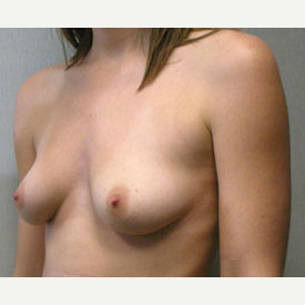 Breast Augmentation before 3681145