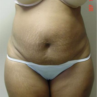 35-44 year old woman treated with Liposuction before 3283260