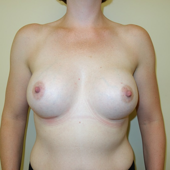 35-44 year old woman treated with Breast Augmentation after 3239664