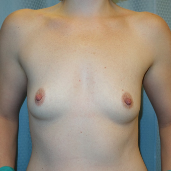35-44 year old woman treated with Breast Augmentation before 3239664