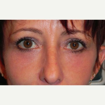 35-44 year old woman treated with Eyelid Surgery & RESET Laser Skin Resurfacing for Eyelid Festoons after 1930053