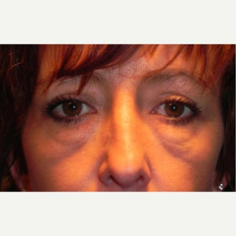 35-44 year old woman treated with Eyelid Surgery & RESET Laser Skin Resurfacing for Eyelid Festoons before 1930053