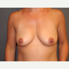 25-34 year old woman treated with Breast Lift before 3339539