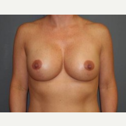 25-34 year old woman treated with Breast Lift after 3339539