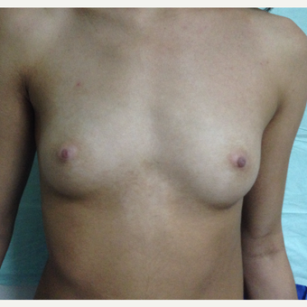 25-34 year old woman treated with Breast Augmentation before 3835703