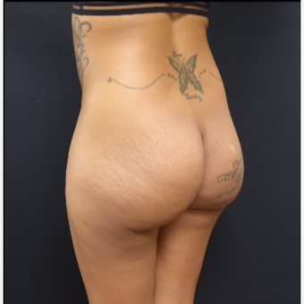 25-34 year old woman treated with 712cc Implants and Fat Transfer for her Butt Augmentation before 3129103