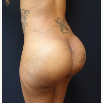 25-34 year old woman treated with 712cc Implants and Fat Transfer for her Butt Augmentation after 3129103
