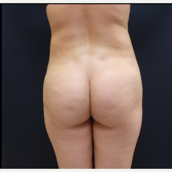 25-34 year old woman treated with Butt Augmentation using 712cc Butt Implants before 3259497