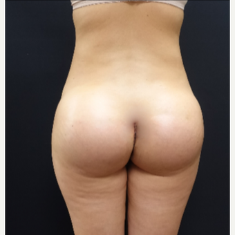 25-34 year old woman treated with Butt Augmentation using 712cc Butt Implants after 3259497