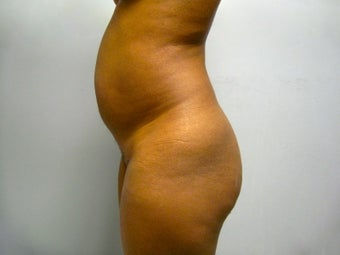 37 Year Old Female Treated for Buttocks Reshaping before 1157279