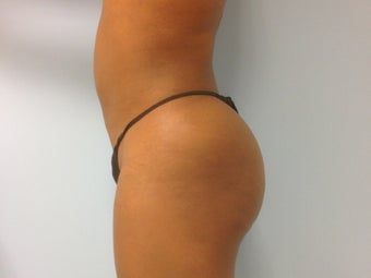 37 Year Old Female Treated for Buttocks Reshaping after 1157279