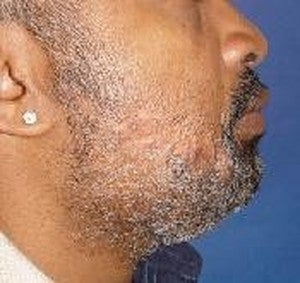 Male Treated for Face Scar after 1401351