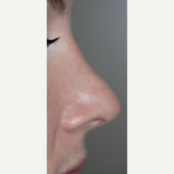 25-34 year old woman treated with Non Surgical Nose Job before 3014755