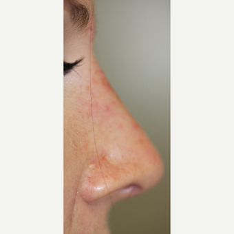 25-34 year old woman treated with Non Surgical Nose Job after 3014755