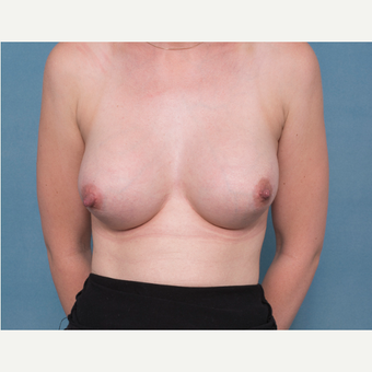 25-34 year old woman treated with Breast Implant Removal and Replacement before 3540083