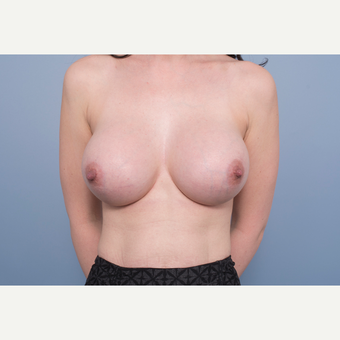 25-34 year old woman treated with Breast Implant Removal and Replacement after 3540083