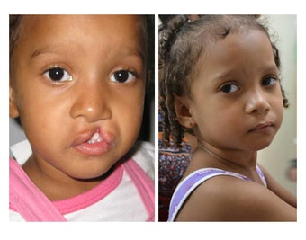 Cleft Lip and Palate Repair before 928094