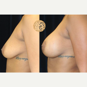35-44 year old woman treated with Breast Augmentation after 3176566