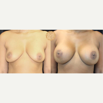 35-44 year old woman treated with Breast Augmentation before 3176566