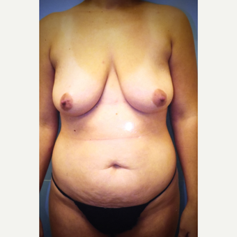 35-44 year old woman treated with Tummy Tuck before 3379076