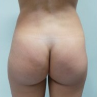 Supercharged Brazilian butt lift combining buttock implants and fatgrafting before 1937804