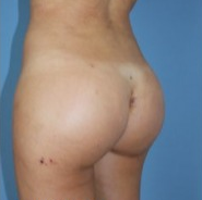 Supercharged Brazilian butt lift combining buttock implants and fatgrafting 1937804