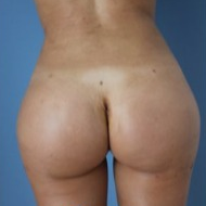 Supercharged Brazilian butt lift combining buttock implants and fatgrafting after 1937804