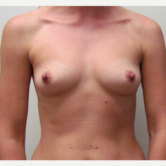 Inspira Breast Implants for this 37 Year Old Woman before 3148827