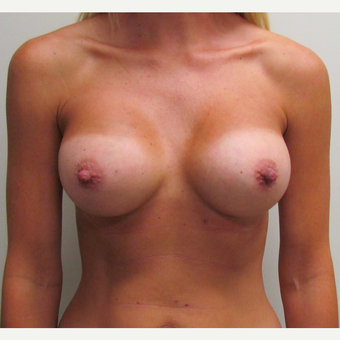 Inspira Breast Implants for this 37 Year Old Woman after 3148827