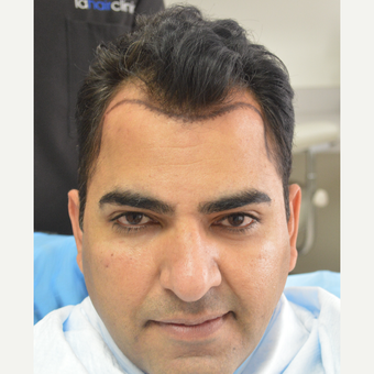 45-54 year old man treated with FUE Hair Transplant before 3105040
