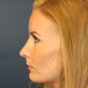 35-44 year old woman treated with Rhinoplasty after 3559724