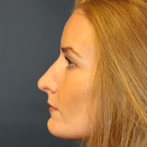 35-44 year old woman treated with Rhinoplasty before 3559724